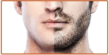 How Beard Transplant work