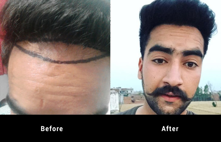 Before and after hair Transplant treatment