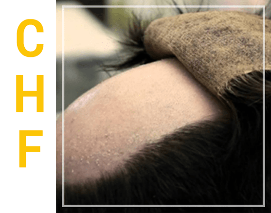 CHF Hair surgical procedure